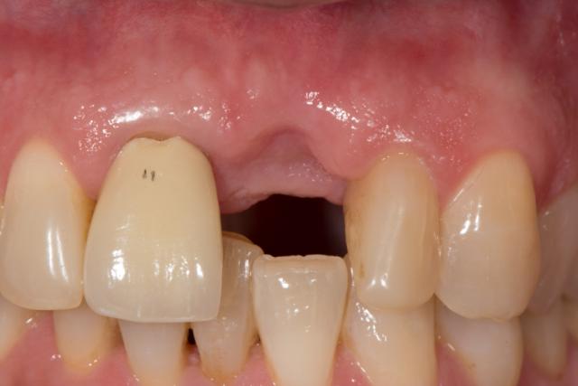 ceramic implants figure 2