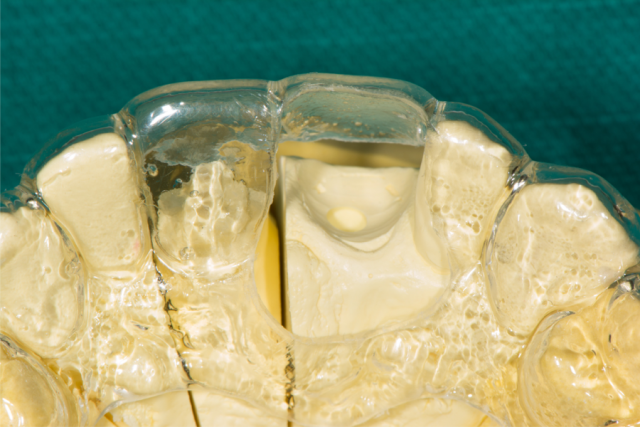 ceramic implants figure 3