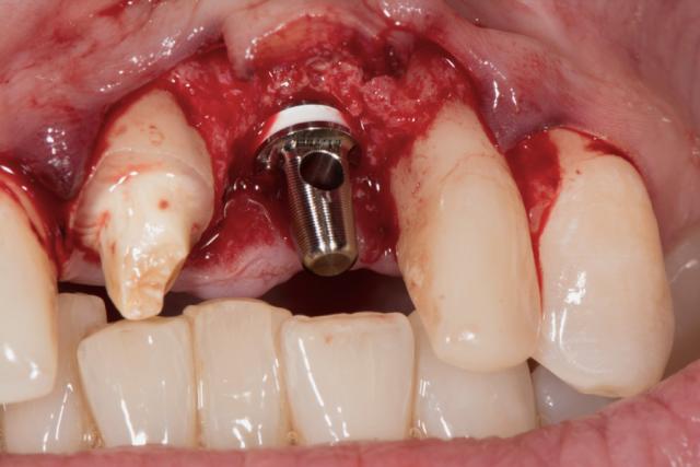ceramic implants figure 5
