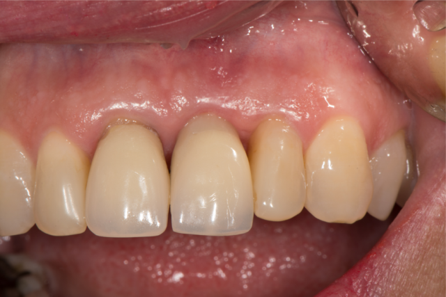 ceramic implants figure 8