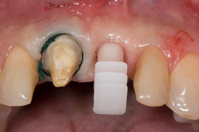 ceramic implants figure 9