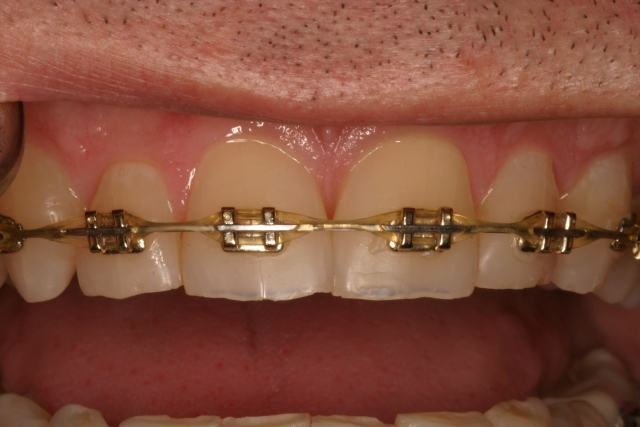 dental composite comparison figure 1