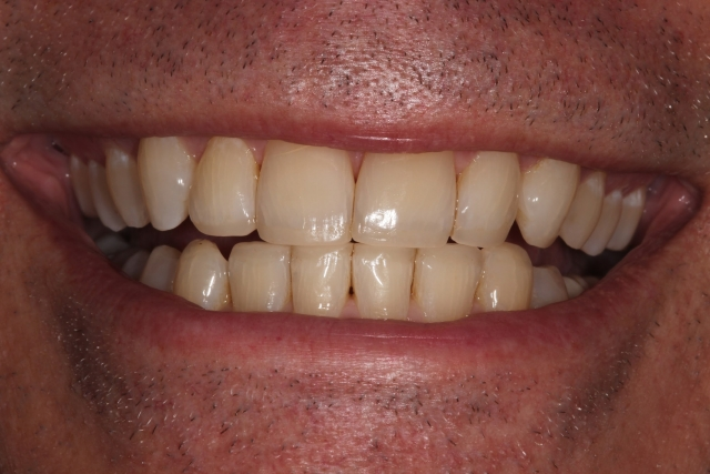 dental composite comparison figure 2