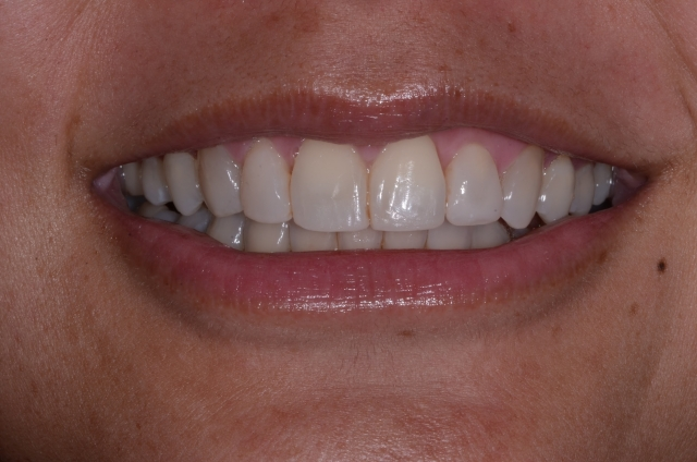 dental composite comparison figure 4