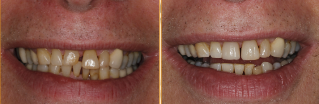 dental composite comparison figure 5
