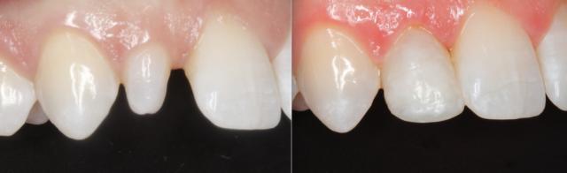 dental composite comparison figure 6