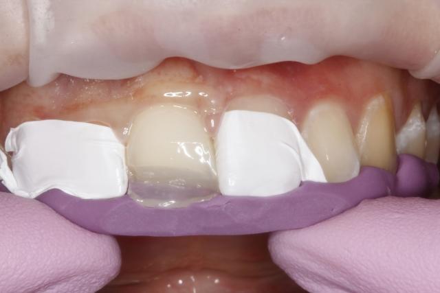 dental composite comparison figure 7