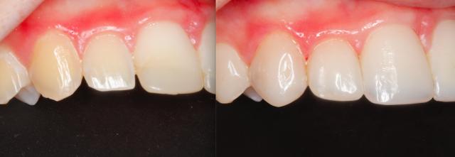 dental composite comparison figure 8