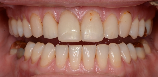 breaking veneers