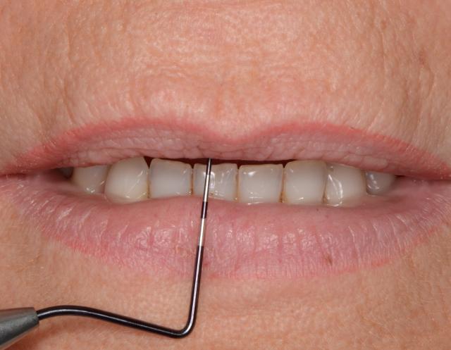 teeth not visible