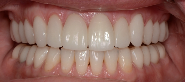finished veneers