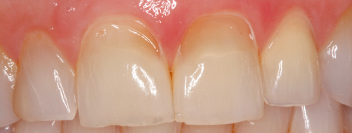 uncommon pattern of dental erosion figure 1