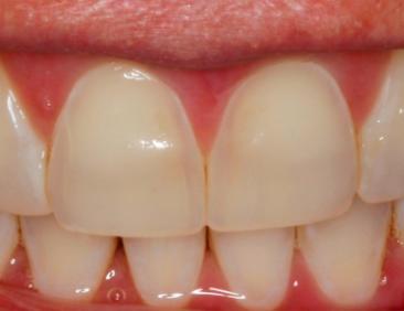 uncommon pattern of dental erosion figure 2