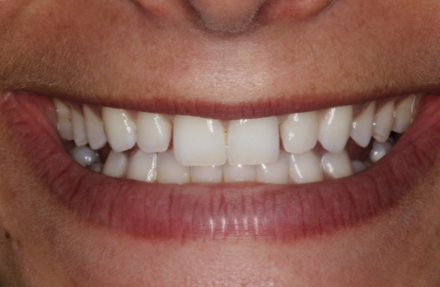 retained teeth process