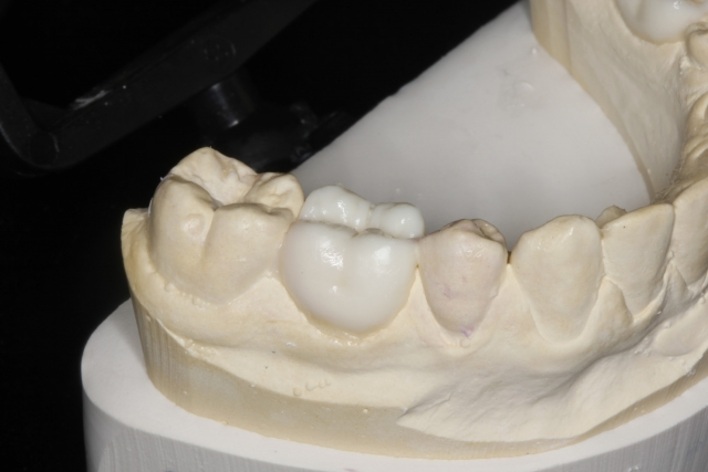 treatment for retained primary molars