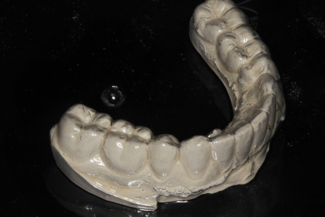 composite crowns for primary molars