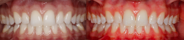 primary molar restorations