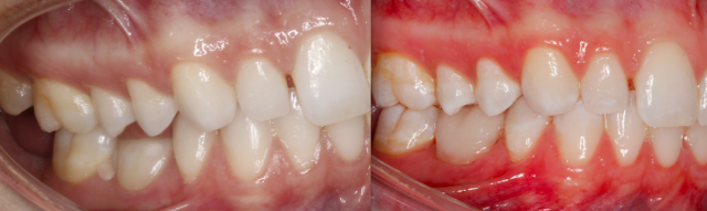 treatment alternative for retained primary molars