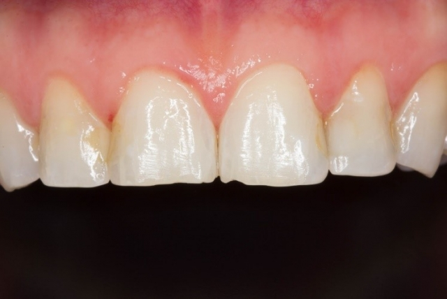 tooth contraster photo of dental patient