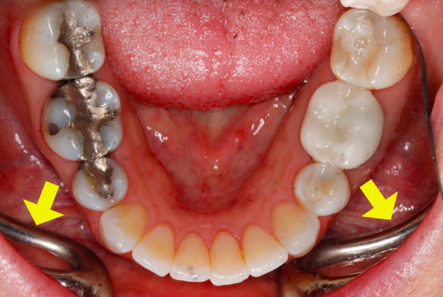 dental photography tips figure 3