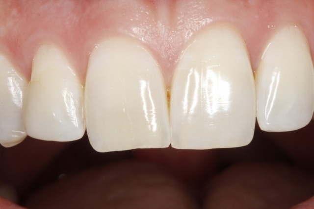 single tooth restoration