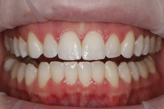 esthetic restorations chipped tooth