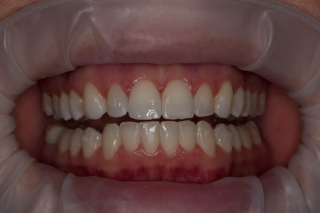 optragate isolation dentistry