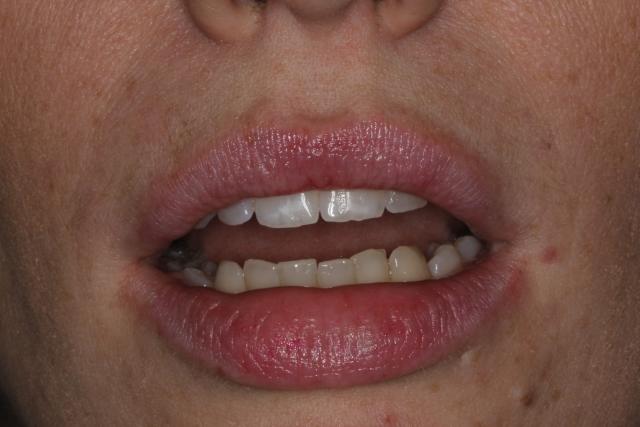 lip at rest close up dental patient photo