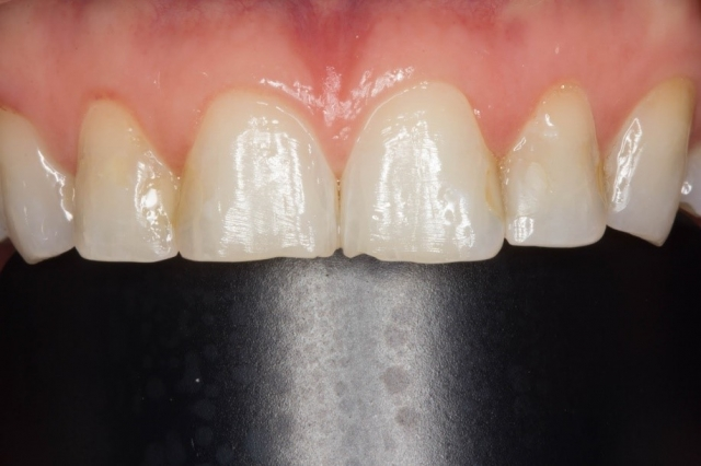 metal contraster dental patient photo