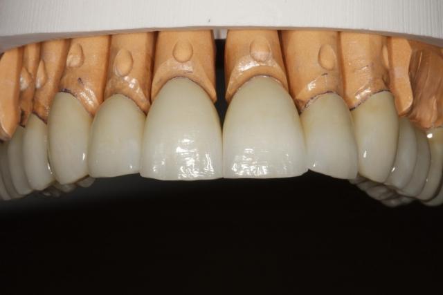 intraoral mock-up figure 3