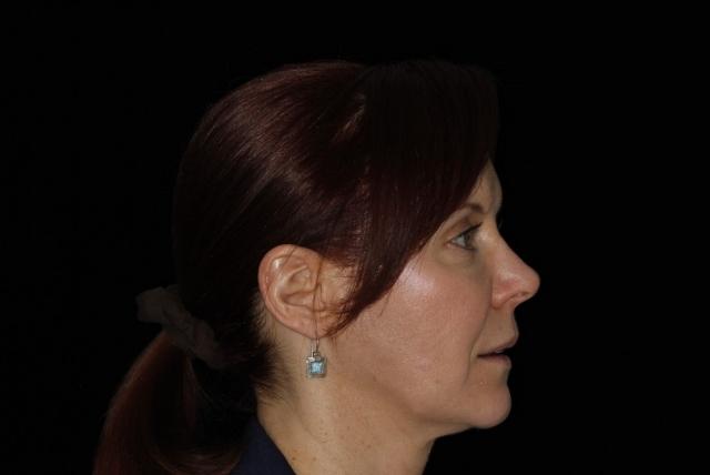 dental patient profile photo