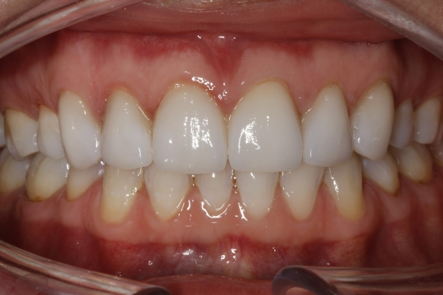 teeth together retracted dental patient photo