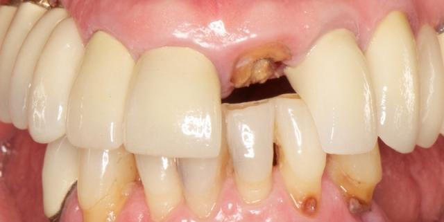 dental implants loading protocols image