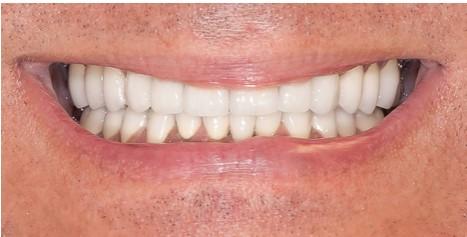 grinding teeth image