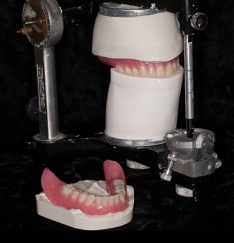 Successful denture insertion Figure 5