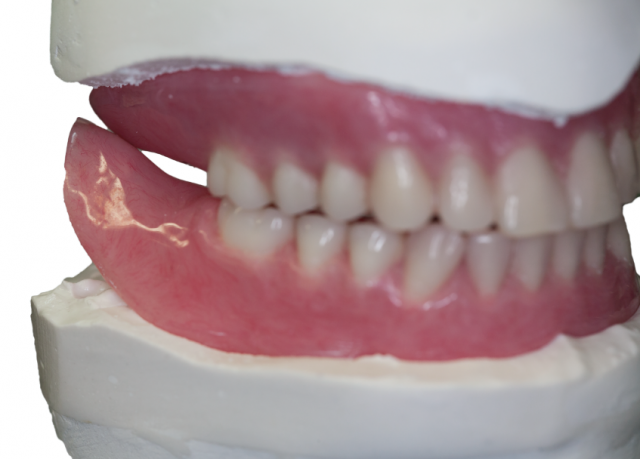 Successful denture insertion Figure 6