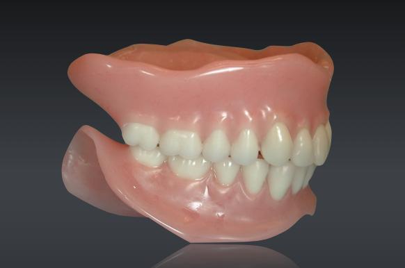 Complete denture fabrication