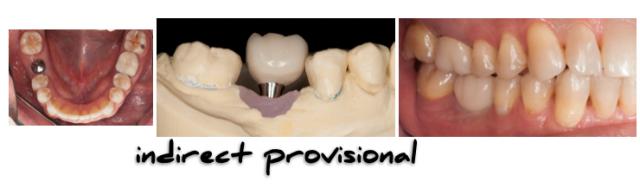 Implant Working Cast Part 2 Figure 4