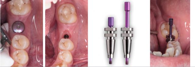 Implant Working Cast Part 2 Figure 5