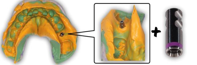 Implant Working Cast Part 2 Figure 6