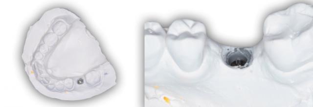 Implant Working Cast Part 2 Figure 8