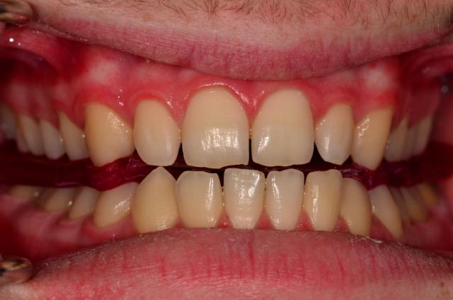 Class I molar relationship