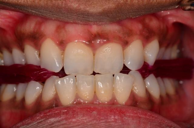 Class II dental patient
