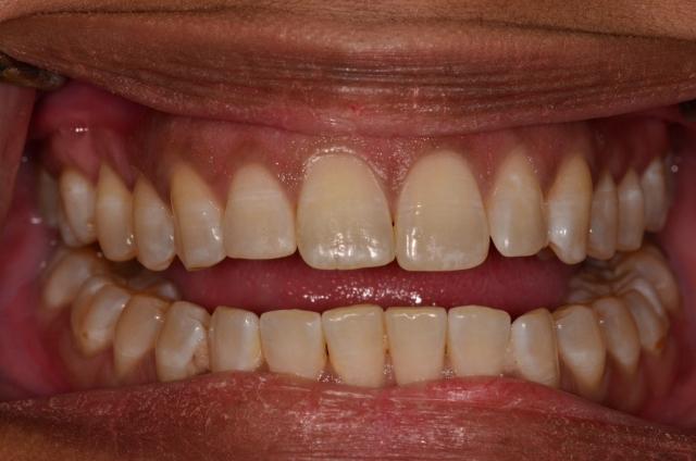 Class II with anterior open bite