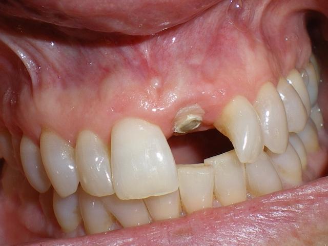 Single central incisor Figure 13