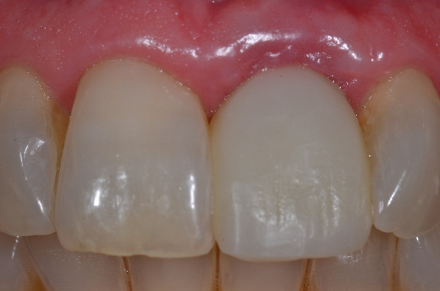 Single central incisor Figure 14