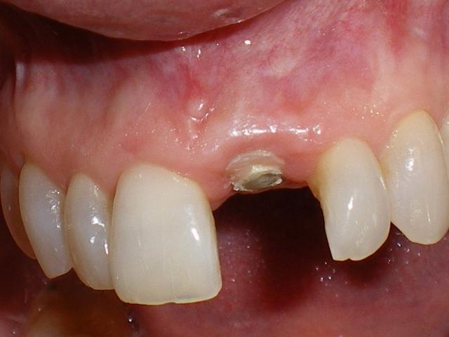 Single central incisor Figure 15