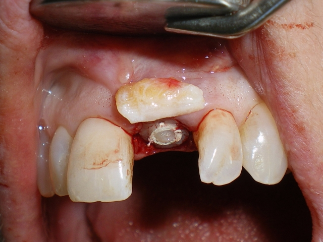 Single central incisor implant Figure 3