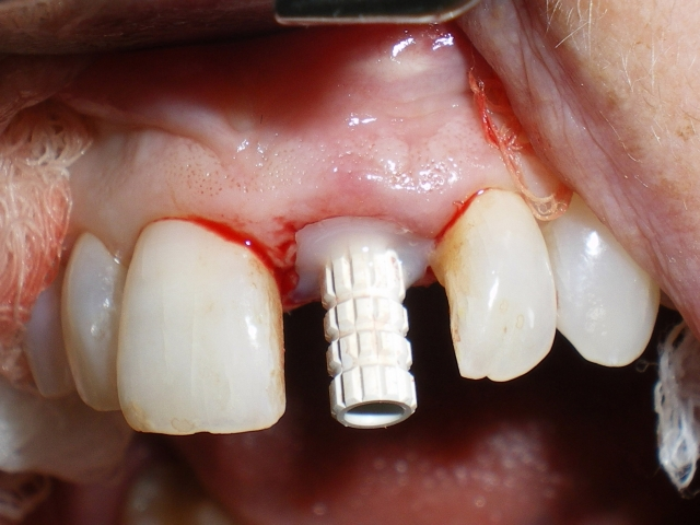 Single central incisor implant Figure 9