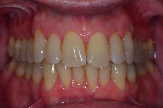 dental treatment planning figure 11